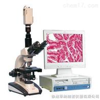 XSP-BM15/XSP-BM15A顯微圖像分析系統