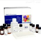 大鼠甲状腺过氧化物酶(TPO)ELISA试剂盒