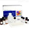 人鸟氨酸脱羧酶(ODC)ELISA试剂盒